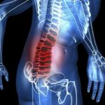 Hernie discale : opter pour un traitement sans chirurgie