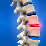Mieux comprendre la hernie discale dorsale