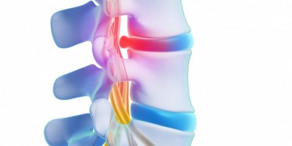 Opération de la hernie discale : quand agir ?