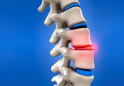 hernie-discale-433x300 Pour mieux comprendre la hernie discale dorsale et les solutions SIEGES KHOL