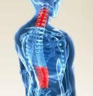 images Pour mieux comprendre la hernie discale dorsale et les solutions SIEGES KHOL