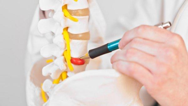 se préparer à une opération de la hernie discale
